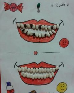 bean-teeth-craft